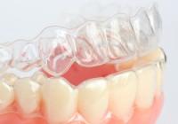 Clínica Dental Poniente Ortodoncia 5